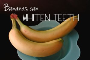 Bananas Can Whiten Teeth