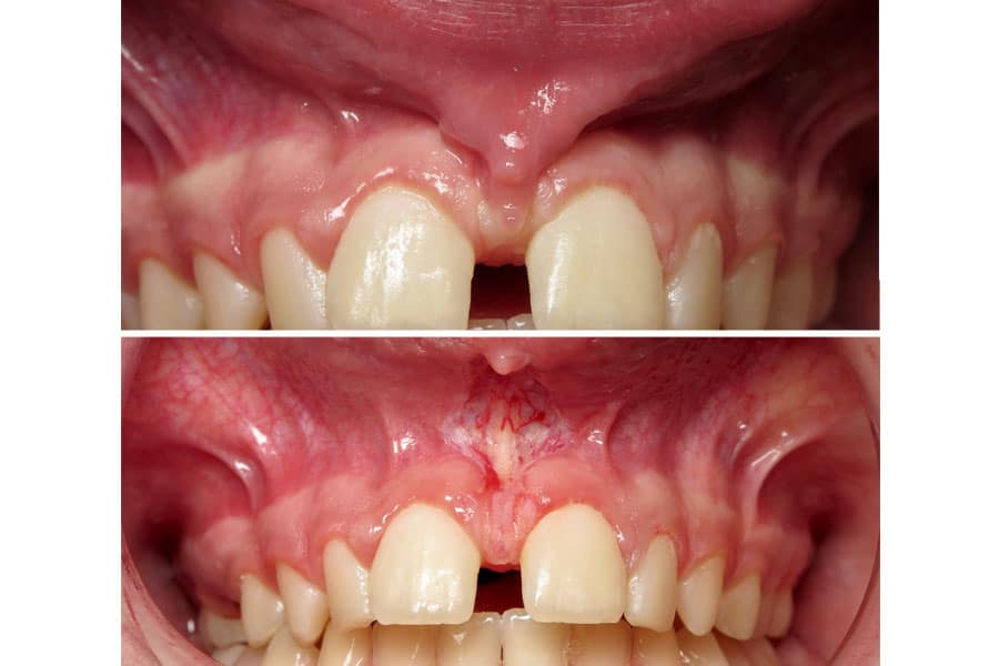 Dental before and after photos in Bowdon - Frenectomy