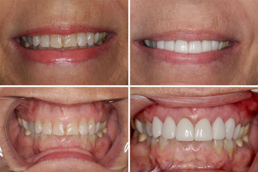 Dental before and after photos in Bowdon - Veneers