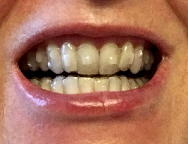 Invisalign trays with attachments.