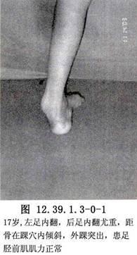 脛前肌腱劈開轉位術_英文_拼音_什么是脛前肌腱劈開轉位術_醫學百科