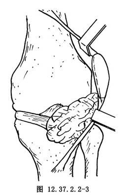 關節切開膝關節滑膜切除術_英文_拼音_什么是關節切開膝關節滑膜切除術_醫學百科