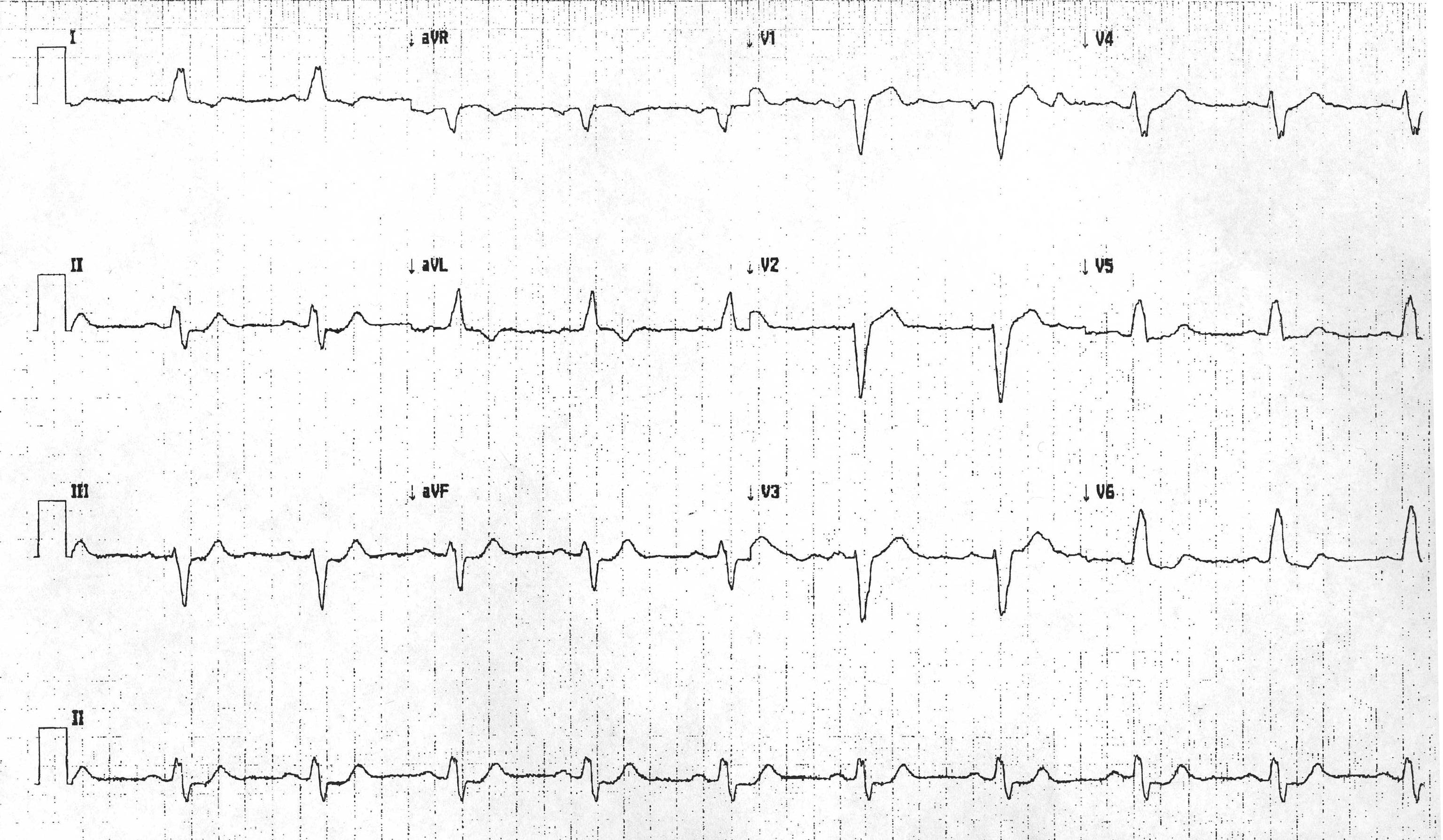 St Elevation Myocardial Infarction Electrocardiogram