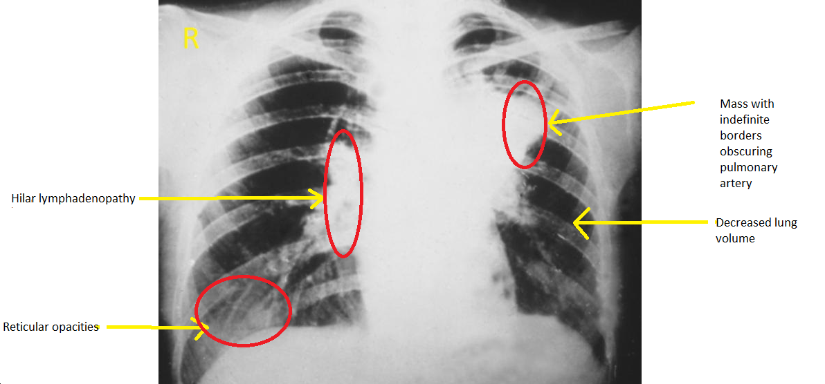 Primary Pulmonary Artery