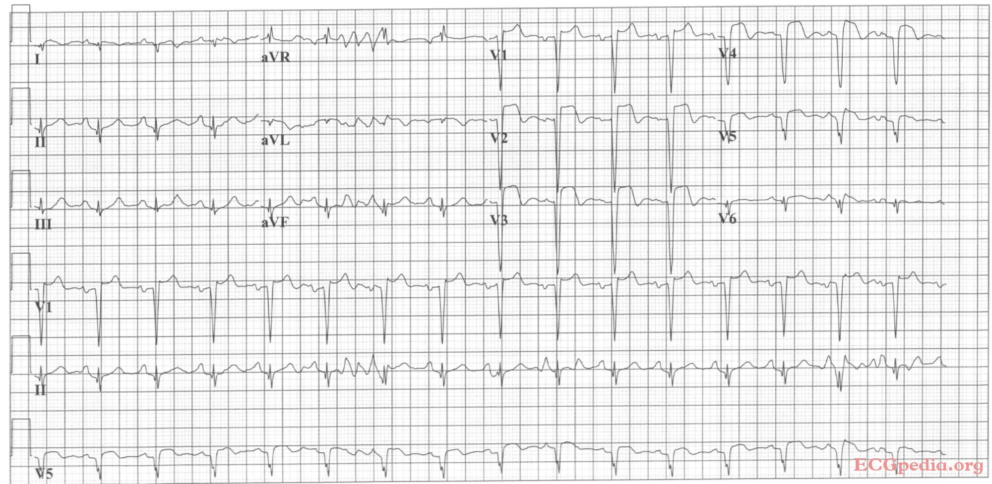 Anterior Myocardial Infarction