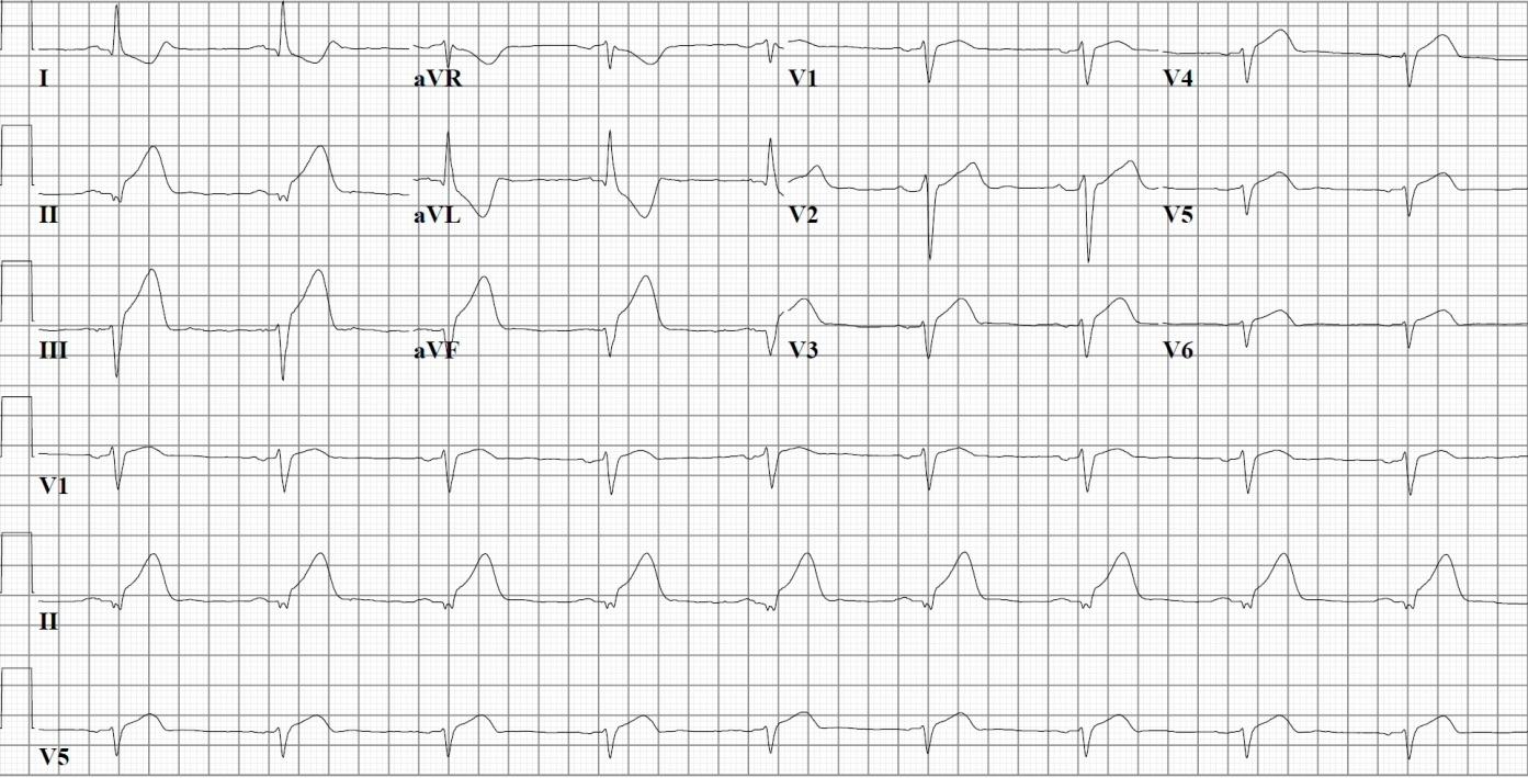 Right ventricular myocardial infarction electrocardiogram