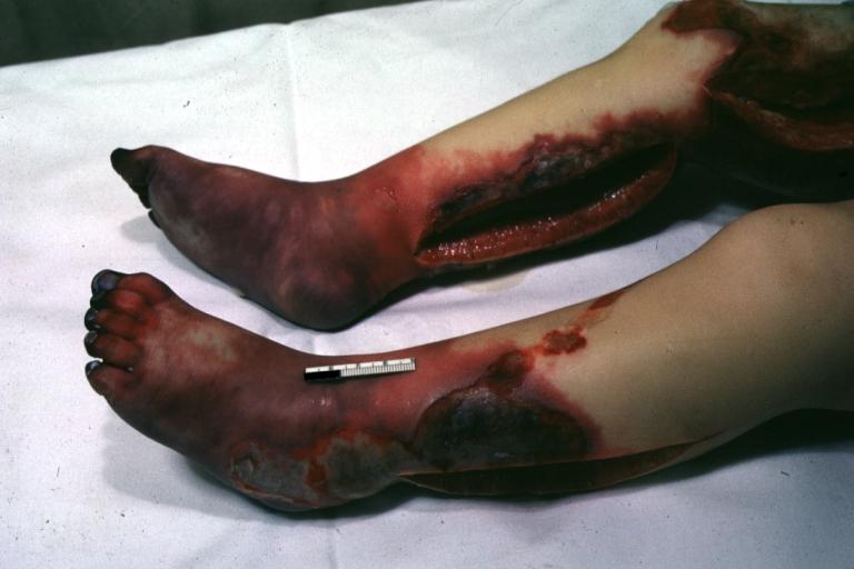 Acrocyanosis pathophysiology  wikidoc