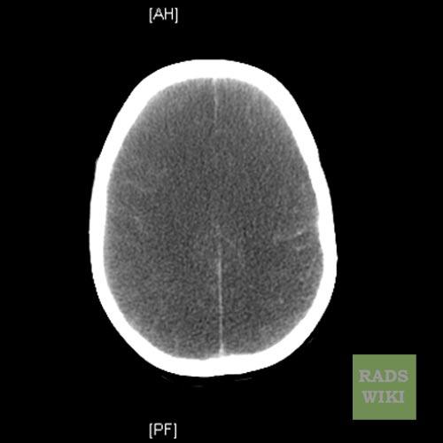 Anoxic brain injury CT  wikidoc