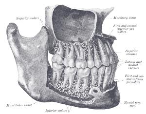 Wisdom teeth  wikidoc