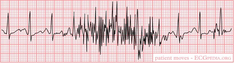 EKG artifacts  wikidoc