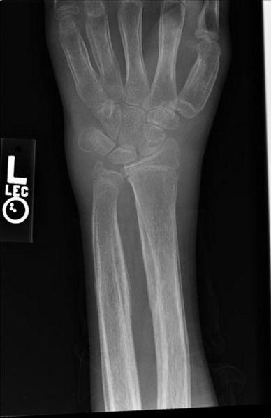 Hypertrophic Pulmonary Osteoarthropathy Wikidoc