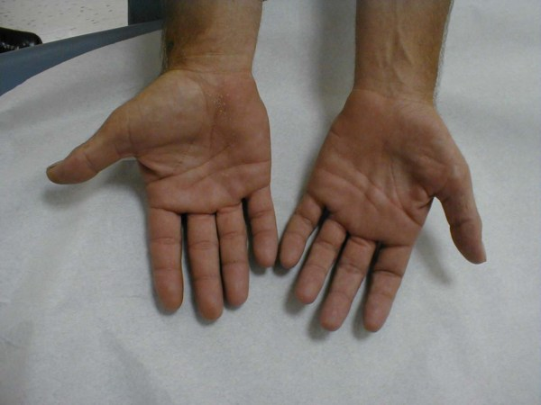 20+ Fat Atrophy Hands Hand Pictures and Ideas on Meta Networks