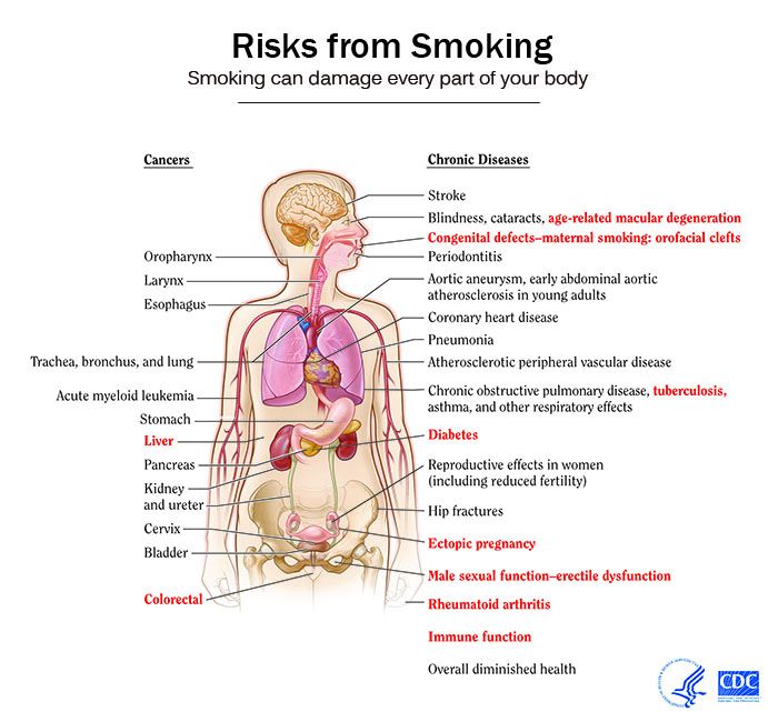 parts of the throat diagram adaptive immune response flow smoking cessation - wikidoc