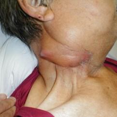Facial Lymph Nodes Diagram Basic Auto Ac Wiring Of Neck And Face Node