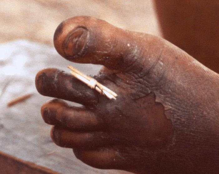 Guinea Worm Removal Stick