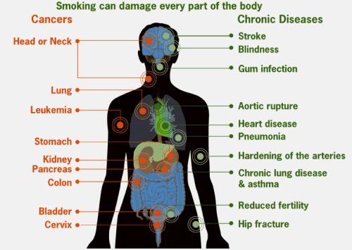 smoking-caused-diseases
