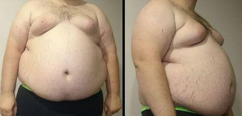 Obesity - Super obese male