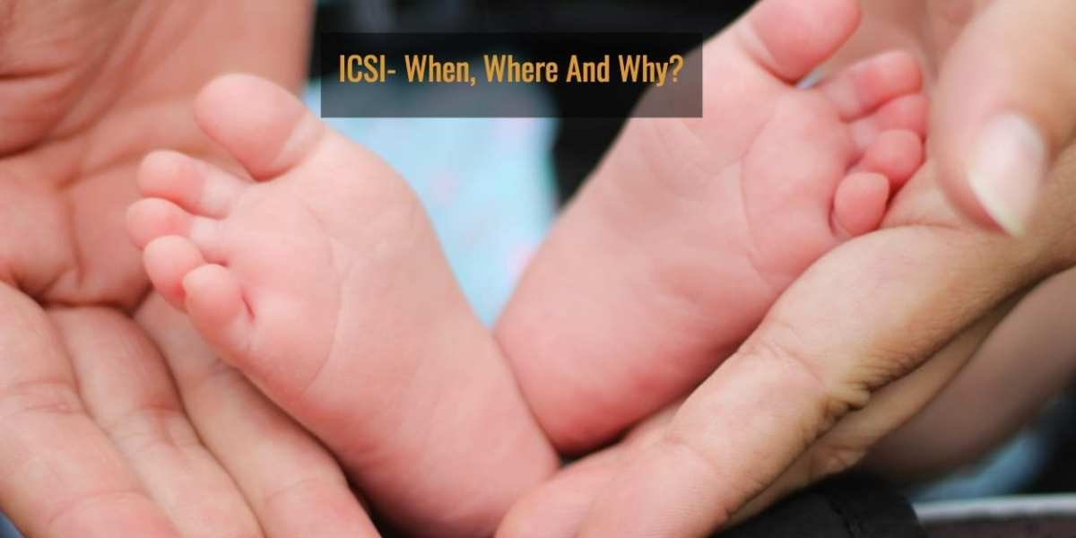 ICSI- When, Where and Why?