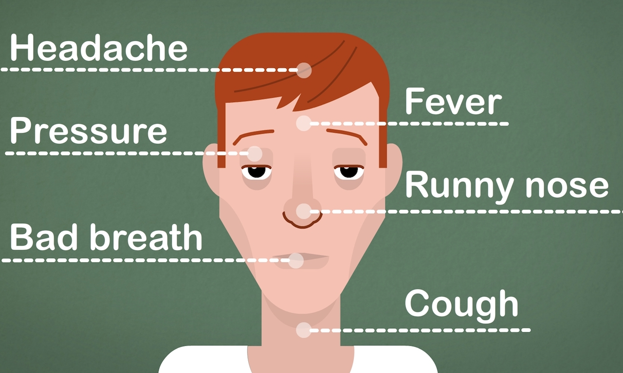 hight resolution of how to clear a sinus infection