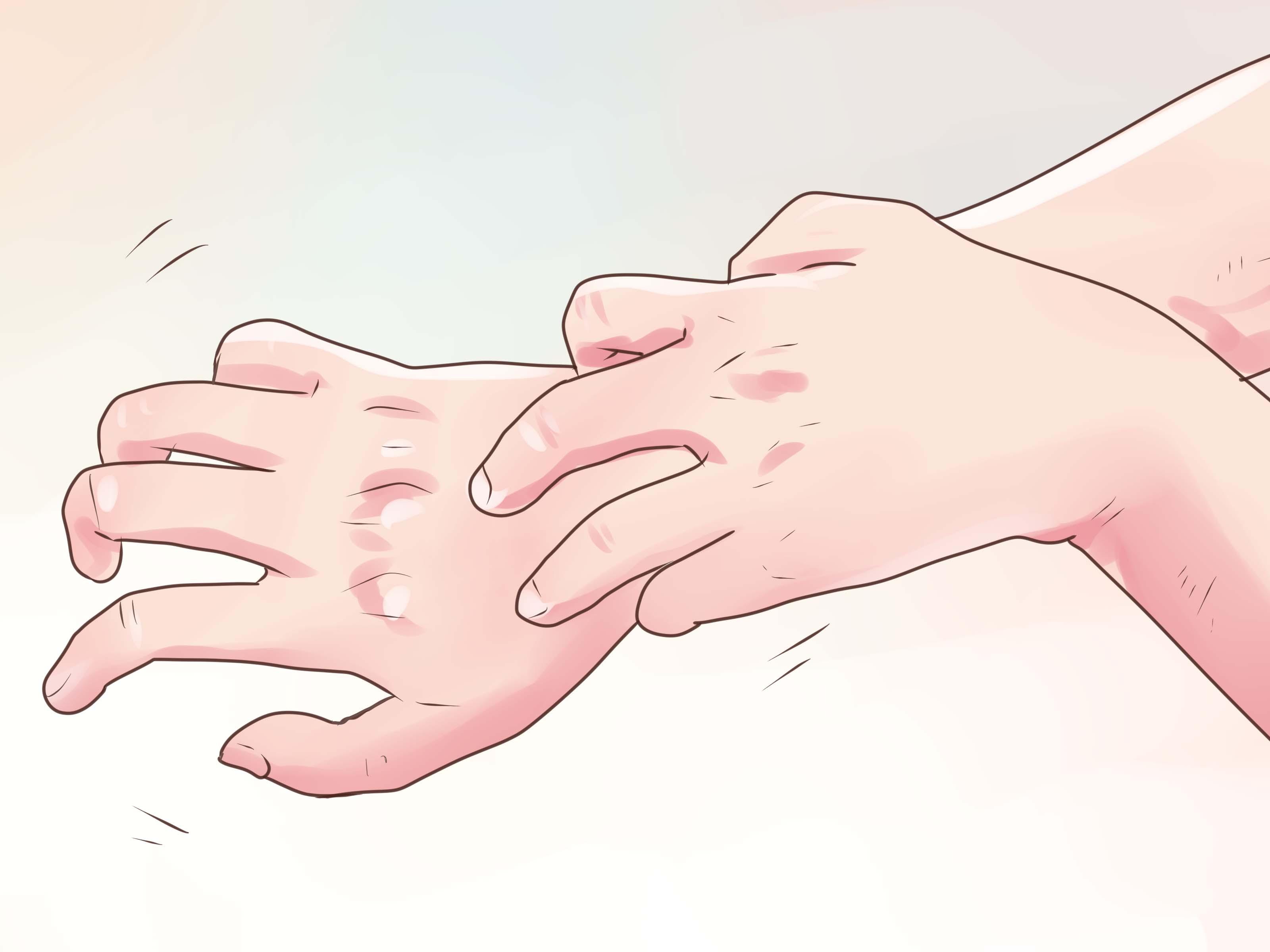 Hematocrit Levels Low