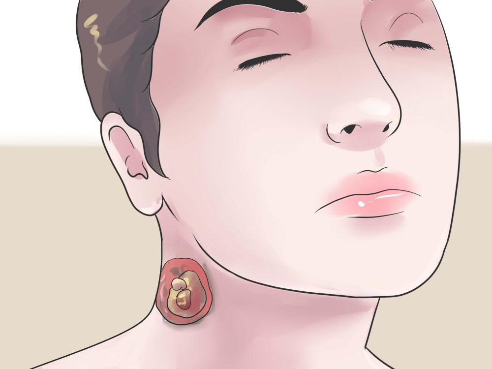 medium resolution of cyst on earlobe diagram