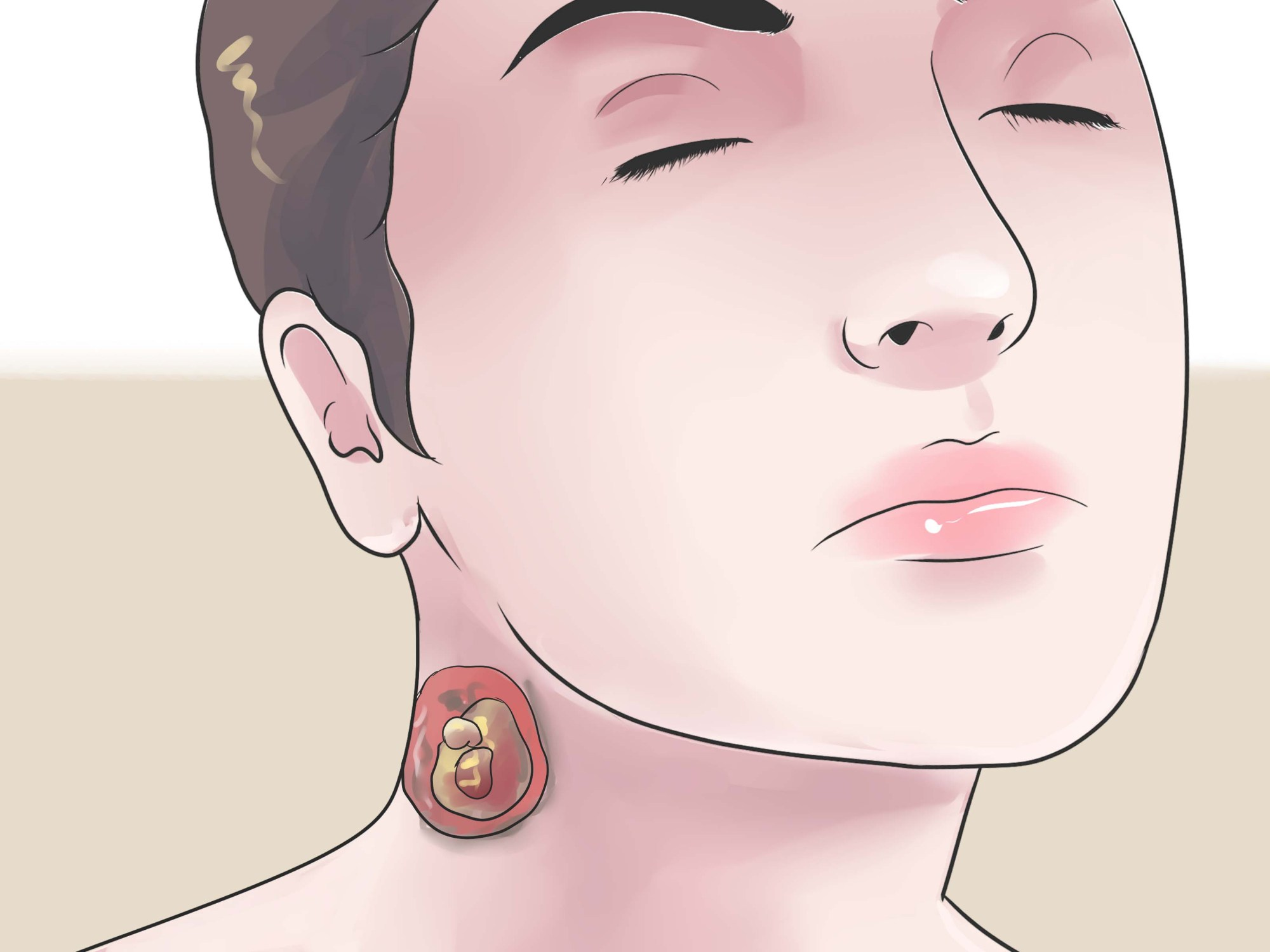 hight resolution of cyst on earlobe diagram