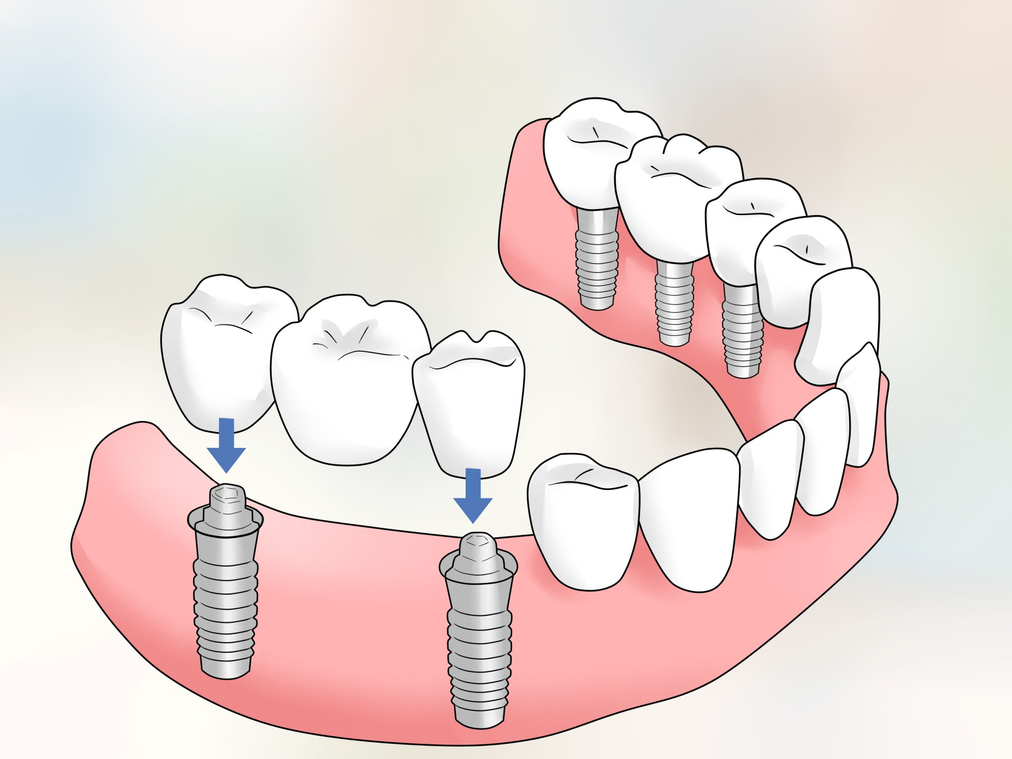 hight resolution of how to keep bottom dentures in place
