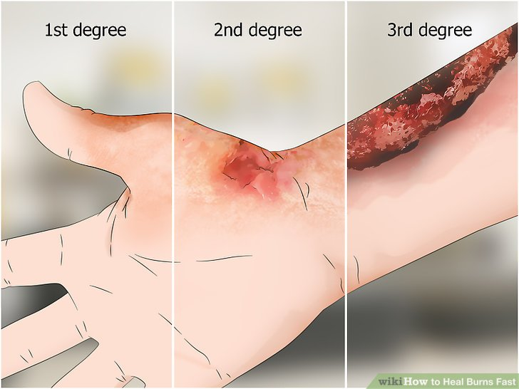 How to Heal Burns Fast with Pictures  wikiHow