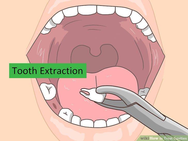 Erwägen Sie, den Zahn herausgezogen zu haben.