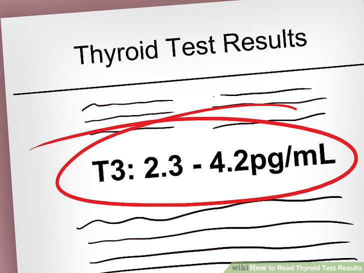 Assess the T3 value in cases of possible hyperthyroidism.