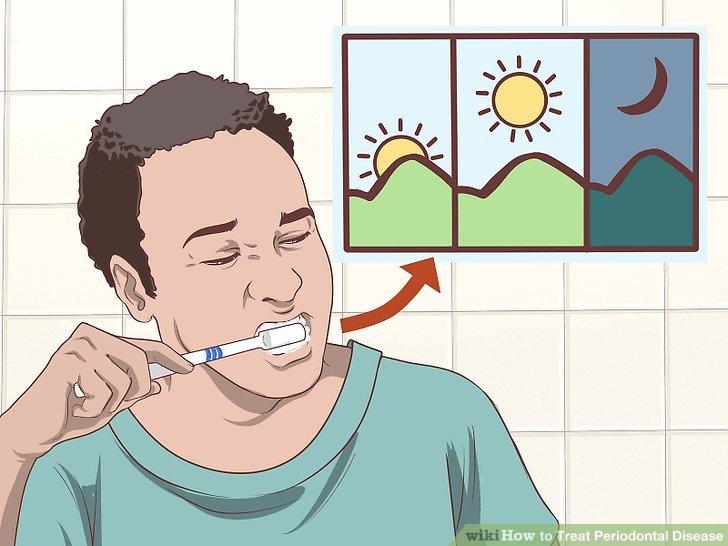 Putzen Sie Ihre Zähne zwei bis drei Mal am Tag mit einer weichen Zahnbürste.