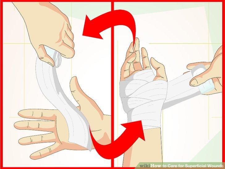 Wechseln Sie den Verband einige Male am Tag, insbesondere wenn er nass oder schmutzig ist.