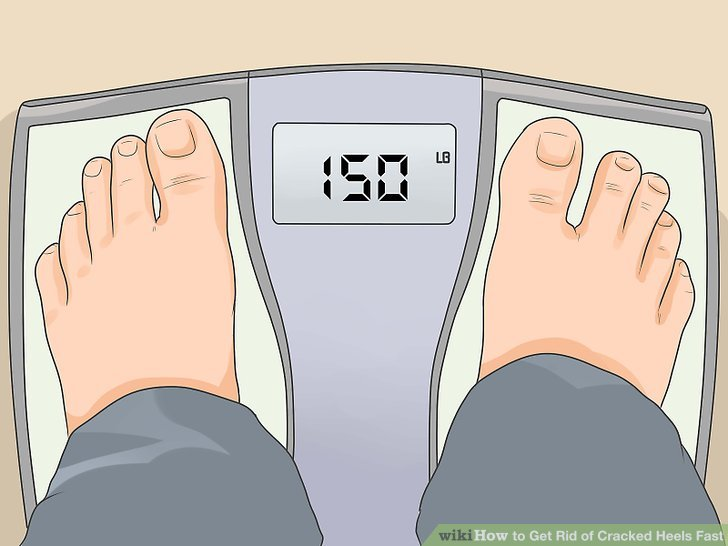 Vorsicht vor Übergewicht.