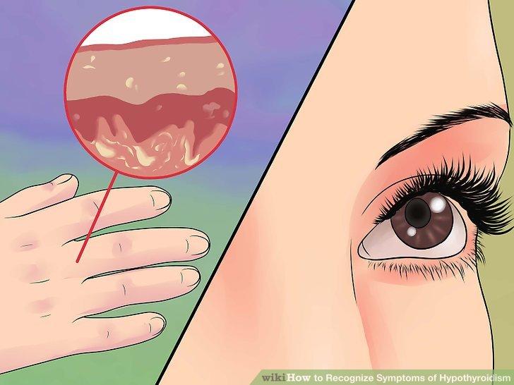 Beachten Sie, wenn Ihre Haut dicker wird, während Ihre Augenbrauen dünner werden.