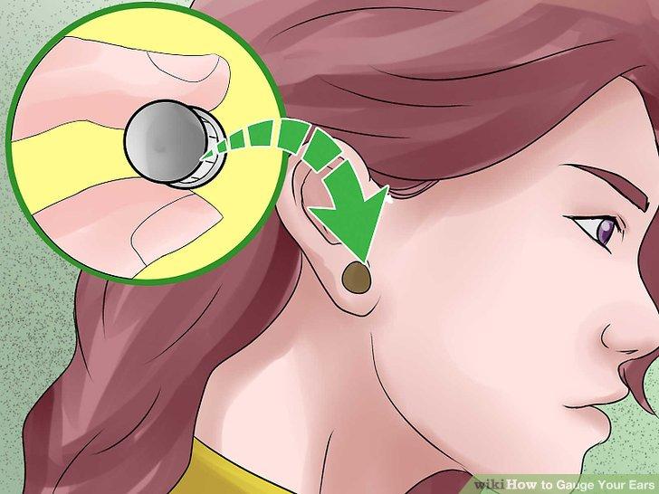 Verwenden Sie chirurgisches Klebeband, um die Größe mit der Zeit schrittweise zu vergrößern.