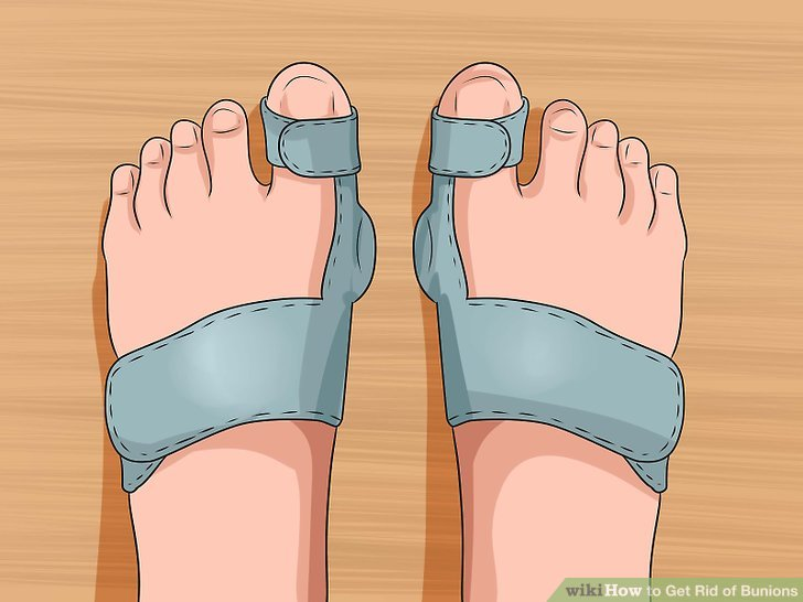 Wear bunion splints at night.