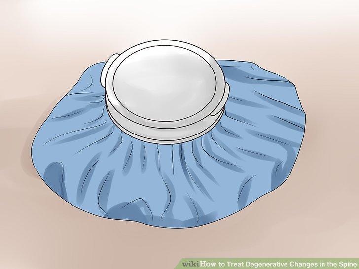 Wenden Sie heiße und kalte Kompressen zur Schmerzlinderung an.