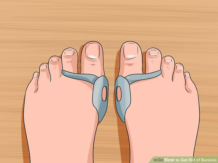 Wear a bunion pad or shoe inserts to realign toes.