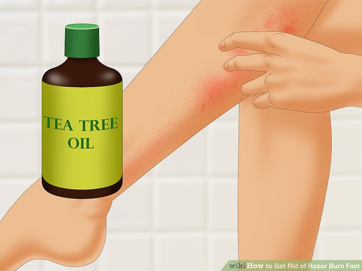 Treat your razor burn with tea tree oil.