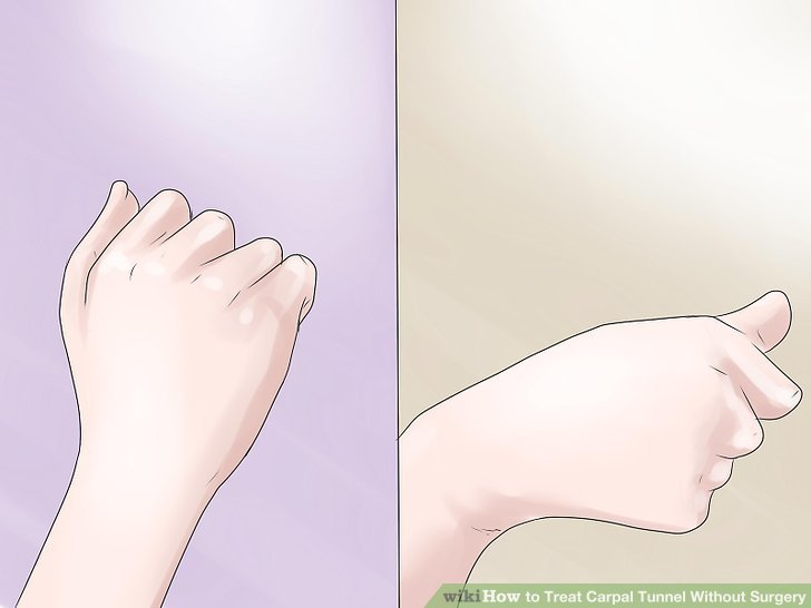 Practice the tendon gliding exercise.