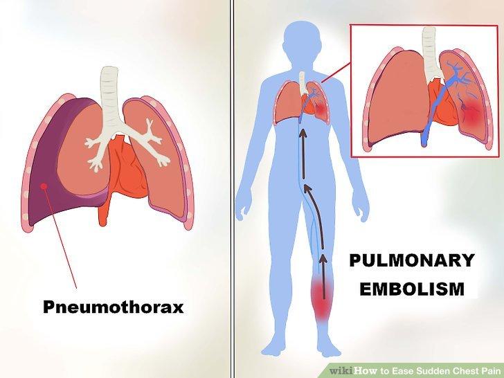 Achten Sie auf die Symptome von Lungenembolie und Pneumothorax.