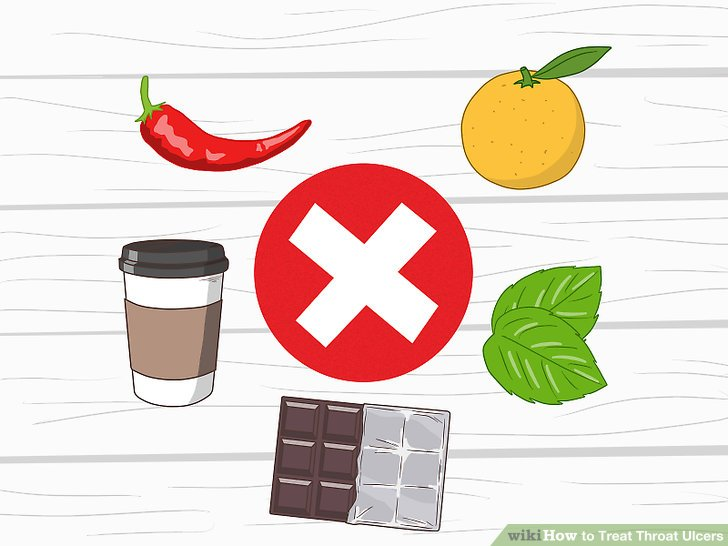 Stay away from caffeine and irritating foods.