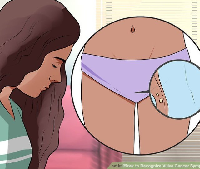 Image Titled Recognize Vulva Cancer Symptoms Step 3
