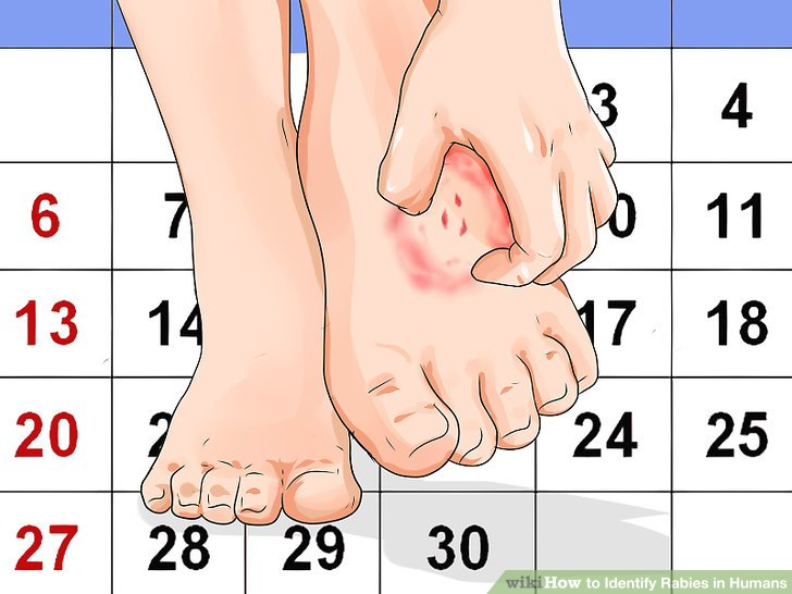 Check for an itching or prickling sensation at the point of infection.