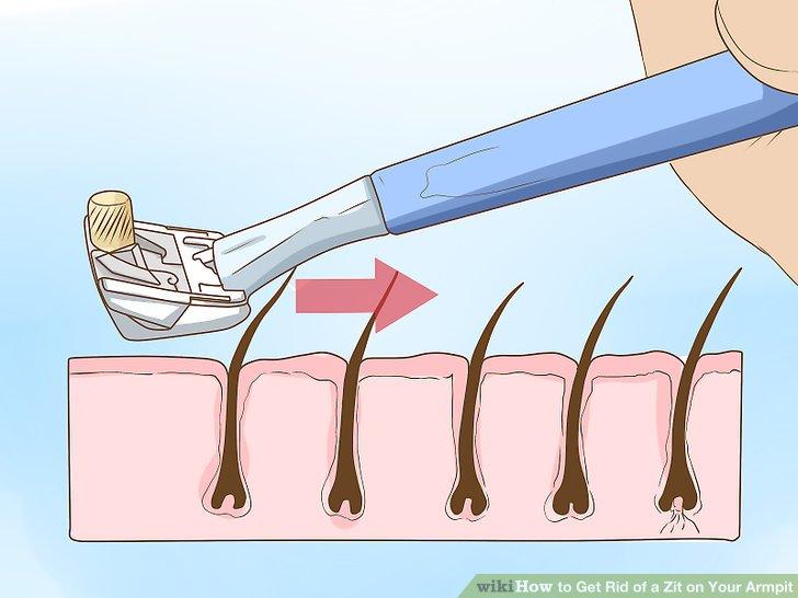 Rasieren Sie sich in Richtung Haarwuchs.