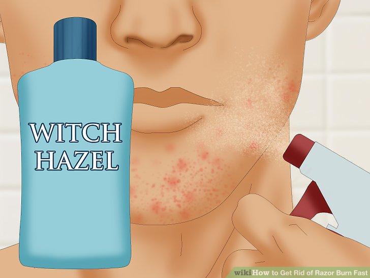 Use witch hazel on your razor burn.