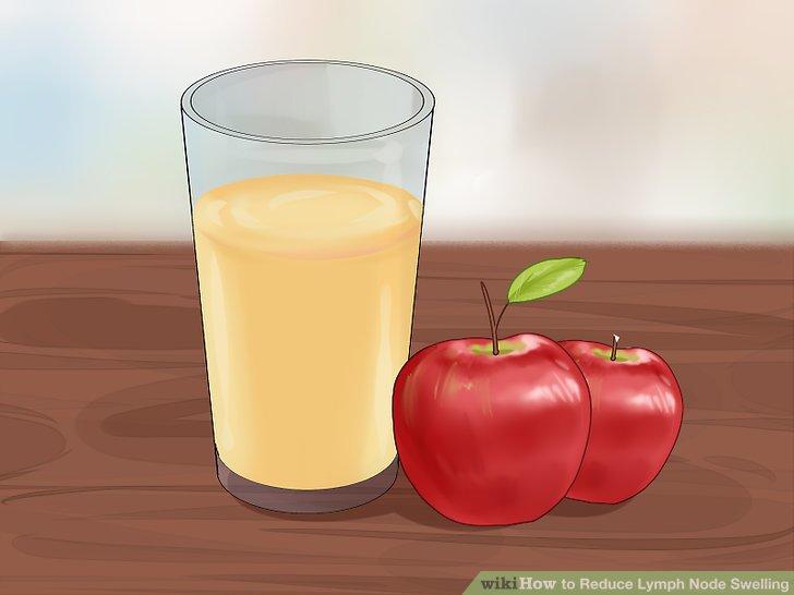 Trinken Sie eine Apfelessig-Wasser-Mischung.