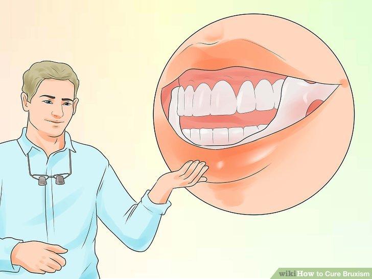 Sprechen Sie mit Ihrem Zahnarzt darüber, ob Sie fit für einen Mundschutz werden.
