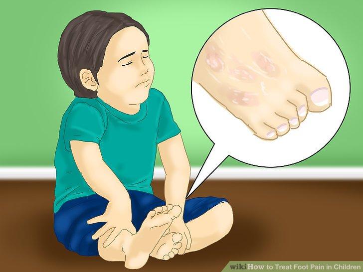 Beachten Sie, wenn Ihr Kind über Juckreiz oder Brennen an der Haut seiner Füße klagt.