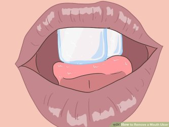 Treatment dan Diagnosa lidah terbakar- Global Estetik Dental Care